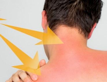 Sunburnt Skin